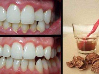 Избавляемся от зубного камня при помощи домашнего средства